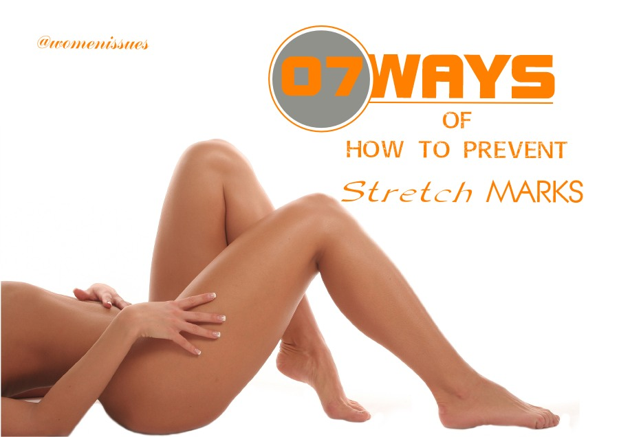 7 Ways of how to prevent stretch marks