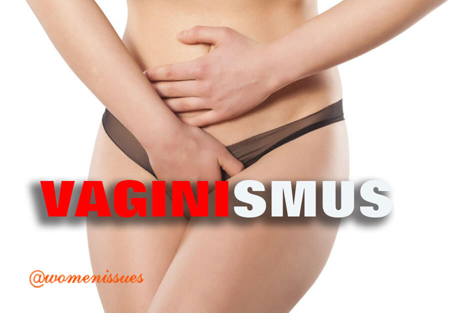 VAGINISMUS-women-issues-new (1)
